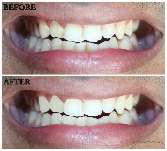 At-home Teeth Whitening with SmileBrilliant